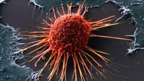 Jenis Kanker Mematikan Yang Bisa Dicegah Dengan ...